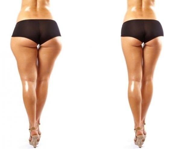 Эффективный Способ Похудения Бедер. Как похудеть в бедрах